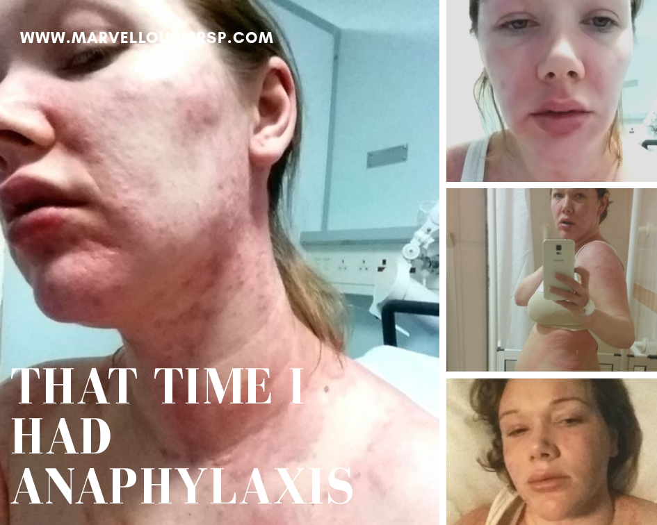 Anaphylaxis mast cell activation syndrome allergic reaction Ehlers Danlos
